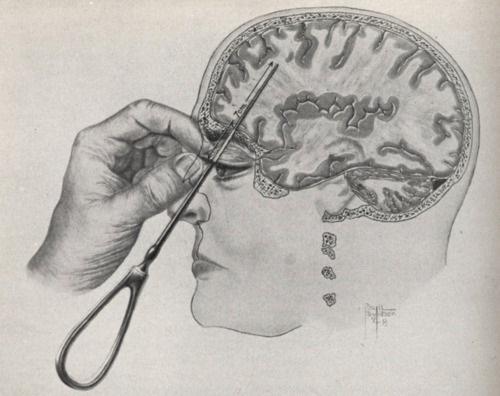Frontal Lobotomy diagram